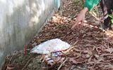 Vụ phát hiện 300 thai nhi ở nhà máy rác: Giao Sở Y tế lập tổ công tác kiểm tra mẫu vật