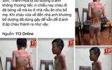 Xác minh thông tin bé trai bị cha dượng bạo hành dã man ở Thanh Hóa