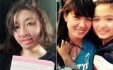 Hành trình hồi sinh của cô gái xinh đẹp bị chồng tẩm xăng đốt gần 3 năm trước