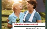4 lợi ích tuyệt vời khi lựa chọn trồng răng Implant cho người già