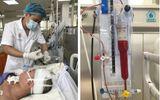 Cô gái 18 tuổi rơi vào hôn mê sâu chỉ sau một cơn đau đầu