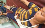 Tin trong nước - Xác minh nghi vấn bé trai 11 tuổi bị hãng xóm đánh gãy tay, phải nhập viện