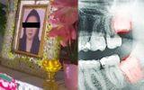 Người phụ nữ đánh bại ung thư, nhưng lại bị răng khôn
