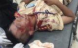 Tin tức tai nạn giao thông mới nhất hôm nay 28/7/2019: Người vi phạm dùng đá đánh CSGT nhập viện