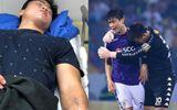 Duy Mạnh vừa truyền nước hạ sốt vẫn xin ra sân thi đấu khiến fan cảm động