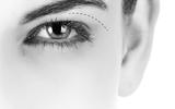 Nên chọn cắt mí mắt hay bấm mí mắt?