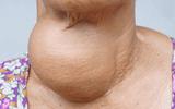 Y tế sức khỏe - Ứng dụng kỹ thuật mới trong điều trị triệt để u tuyến giáp