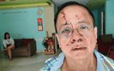 Pháp luật - Việt kiều Đức tố bị nhóm thanh niên đánh túi bụi tại quán karaoke