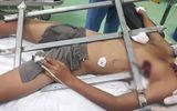 Sức khoẻ - Làm đẹp - Nghệ An: Bé trai leo cây ngã bị rào sắt đâm xuyên ngực