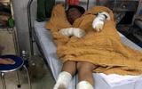 Tin trong nước - Yên Bái: Thay gas để thui chó gây cháy, vợ chồng cùng con 7 tháng tuổi bị bỏng nặng