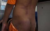 4 trẻ nghi bị bạo hành thâm tím khắp người ở Cà Mau được phát hiện như thế nào?