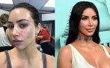 Giải trí - Kim Kardashian đăng ảnh cận mặt lấm tấm vết đỏ vì vảy nến