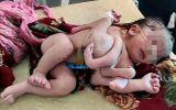 Đời sống - Không siêu âm trước sinh, cặp vợ chồng xót xa khi con gái nhỏ chào đời với 3 tay 4 chân