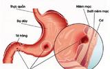 Viêm loét dạ dày – Nguyên nhân trực tiếp gây ung thư
