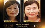 Thẩm mỹ viện Quốc tế Bắc Mỹ trị nám và tàn nhang an toàn hiệu quả tại Thanh Hóa