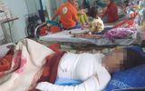 Cãi nhau với chồng, sản phụ mang thai 37 tuần tuổi đổ xăng lên người tự thiêu