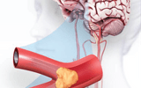 Khỏe mạnh lại sau tai biến nhờ phương pháp mới phục hồi chức năng bằng thảo dược + vật lý trị liệu