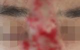 """""""Giật mình"""" hình ảnh nam thanh niên hoại tử mũi, mù mắt sau khi tiêm filler làm đẹp"""