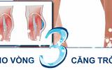 Nâng mông nội soi: Bí quyết cho vòng 3 căng tròn quyến rũ