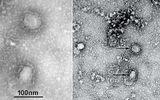 Tin thế giới - Công bố hình ảnh đầu tiên về virus corona gây dịch viêm phổi cấp tại Vũ Hán