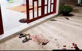 Kiên Giang: Khởi tố gã chồng đâm vợ tử vong chỉ vì chưa nấu cơm
