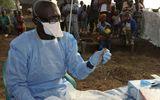15 người Nigeria tử vong chỉ trong chưa đầy một tuần vì căn bệnh lạ