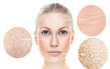 Công nghệ trẻ hóa làn da với máy RG - Phương pháp được đông đảo chị em áp dụng