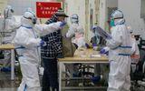 Tin thế giới - Chuyên gia lo ngại khi xuất hiện trường hợp nhiễm virus corona hơn một tháng mà không có triệu chứng