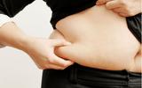 Xã hội - Thu gọn 24cm vòng bụng sau sinh – Nữ tiếp viên hàng không gây sốc