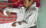 Nhiều trẻ nhỏ gặp tai nạn thương tâm do mải chơi đùa