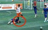 Nam thanh niên bị chém gần lìa tay vì mâu thuẫn khi đá bóng