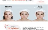 Xã hội - RH - Skin - Thành tựu siêu tái sinh trẻ hoá làn da của Nhật Bản - Lần đầu có mặt tại Việt Nam