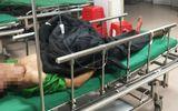 Sức khoẻ - Làm đẹp - Nam bệnh nhân nhập viện cấp cứu cùng đoạn ruột đứt rời