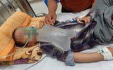 Nhầm thuốc cai nghiện là sirô dâu, bé trai 4 tuổi nguy kịch