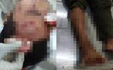 Điều tra vụ kiểm lâm viên bị 10 tên côn đồ xông vào đánh trọng thương