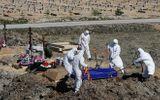 Điều tra chất lượng máy thở do Nga sản xuất sau các vụ cháy bệnh viện khiến nhiều người tử vong