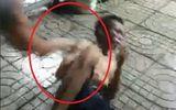 Người đàn ông bị đánh đến nhập viện vì nghi hiếp dâm bé gái tự kỷ
