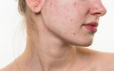 Xã hội - Bác sĩ da liễu cảnh báo các vấn đề về da thường xuyên gặp phải vào mùa hè