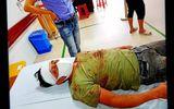 Xã hội - Yên Phong – Bắc Ninh: Kỳ án nhiều vết thương chằng chịt ở đầu chỉ 3% thương tích
