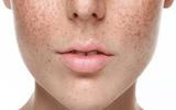 Xã hội - Thai kỳ ảnh hưởng như thế nào đến làn da của bạn?