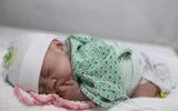 Sức khoẻ - Làm đẹp - Hành trình kỳ diệu điều trị cho bé sinh non chỉ nặng... 600g
