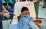 Sức khoẻ - Làm đẹp - Sơ suất khi đào giếng, nam công nhân bị xà-beng dài 1m đâm thấu ngực