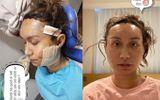 Loạt sao Việt gây chấn động khi công khai quá trình phẫu thuật thẩm mỹ: Lynk Lee gây sốc nhưng vẫn thua một người này