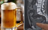 Uống một lúc 10 cốc bia, ma men nhịn tiểu 18 tiếng đến rỗi rách bàng quang
