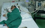Đời sống - Bé trai bị ong vò vẽ đốt hơn 80 vết, nhập viện trong tình trạng phù toàn thân, suy hô hấp nặng