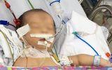 Bé sơ sinh 3 ngày tuổi đột ngột hôn mê do bệnh hiếm gặp, cha mẹ cần lưu ý