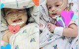 Tin tức đời sống mới nhất ngày 30/7/2020: Hai bé song Nhi đã cai máy thở, sức khoẻ ổn định