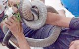 """Vụ mang rắn hổ mang chúa """"khủng"""" gần 5kg đến bệnh viện: Nạn nhân giao tiếp tốt"""