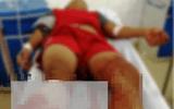 """Vụ thiếu niên 15 tuổi bị chém lìa chân: Người mẹ tiết lộ """"sốc"""""""