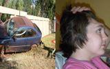 Cô gái mất trán chỉ vì 1 tư thế kỳ cục khi đi xe ô tô